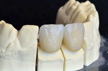 Dental Crowns in Gilroy