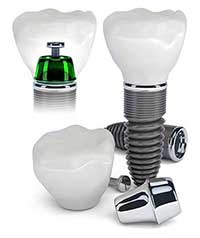 Gilroy Dental Implants