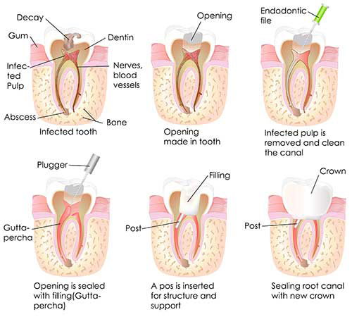 Root Canal Therapy in Gilroy
