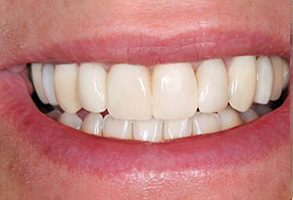 Rucker Before and After Teeth Whitening