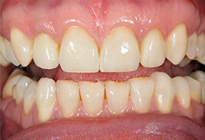dental images in Gilroy