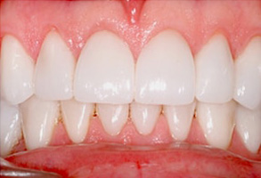 Old Gilroy Before and After Veneers