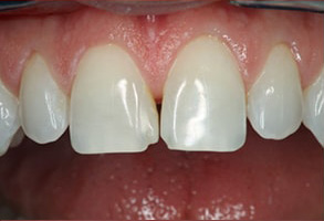 Gilroy Before and After Dental Implants